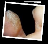 karin-pedicure-voetwrat_2